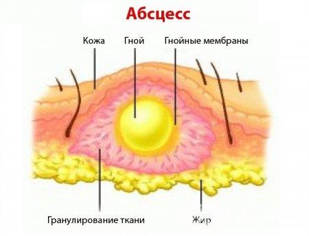 http://ladwater.ru/uploads/posts/2018-06/medium/1529002996_abscess_ctho.jpg