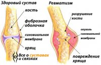 http://ladwater.ru/uploads/posts/2018-06/thumbs/1529002827_rheumatism.jpg